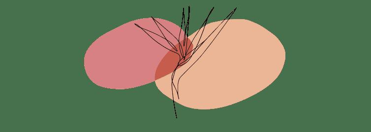 Что такое метастатический рак молочной железы?